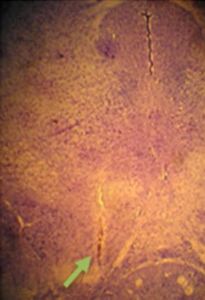 хроническая боль, Experimental Brain Research