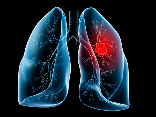 рак легких,