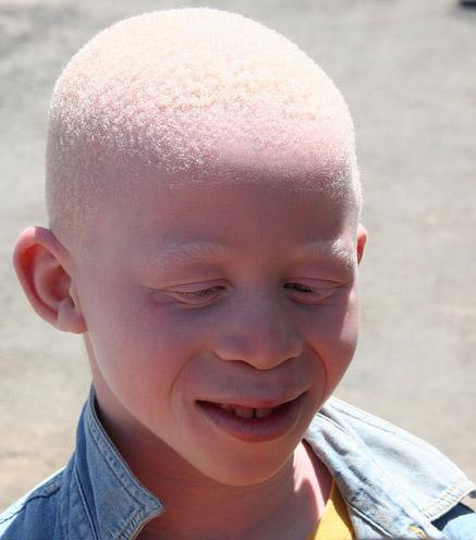 альбинизм, Scientific Reports, ген