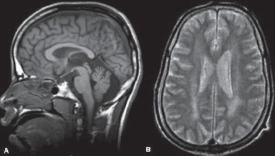 Болезнь Ниманна — Пика, тип C