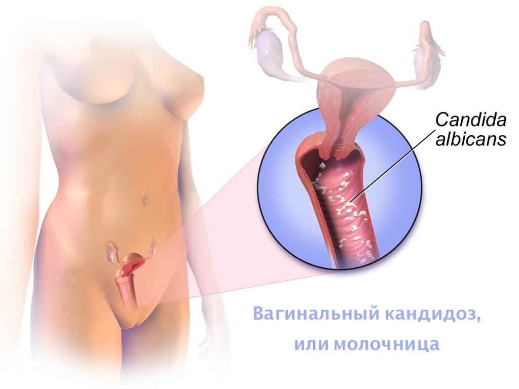 ВПЧ: лечение и планирование беременности - Мой Гинеколог