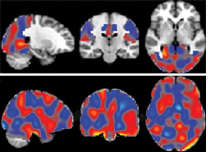 Radiology, болезнь Альцгеймера,