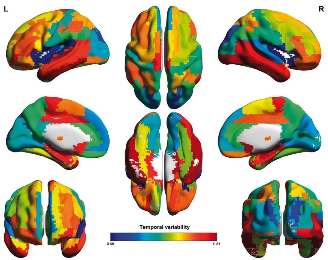 МРТ, Brain