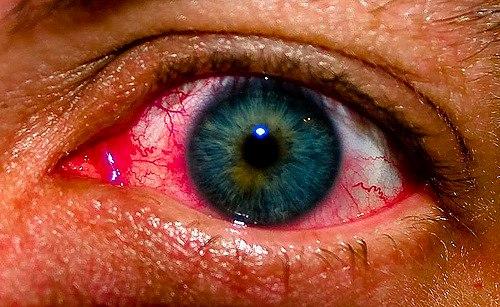 Сенная лихорадка - что это такое и причины ее возникновения