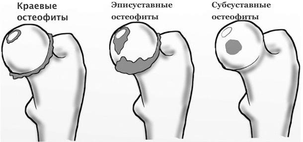 остеофиты краям суставных поверхностей