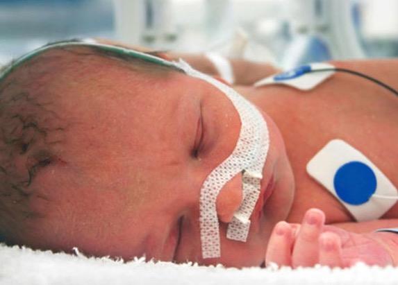 новорожденный, врожденный порок сердца