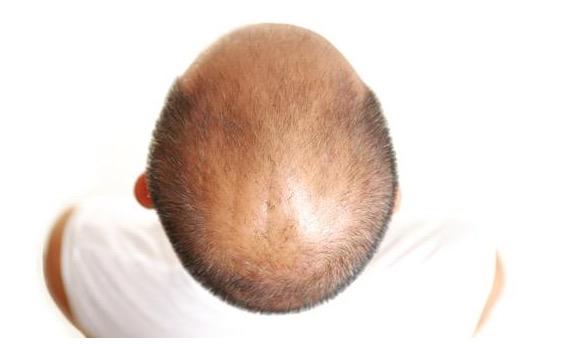 прополис при лечении выпадении волос