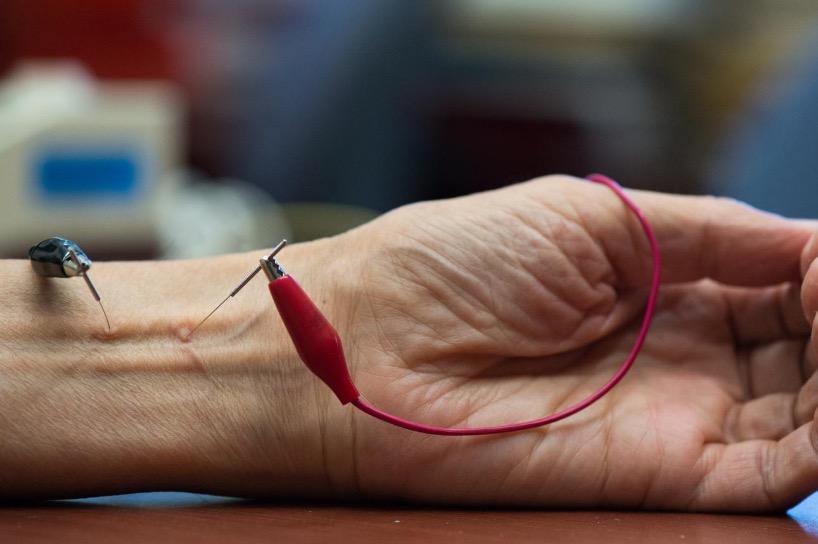 Артериальной давление, гипертония, электроакупунтура, иглоукалывание