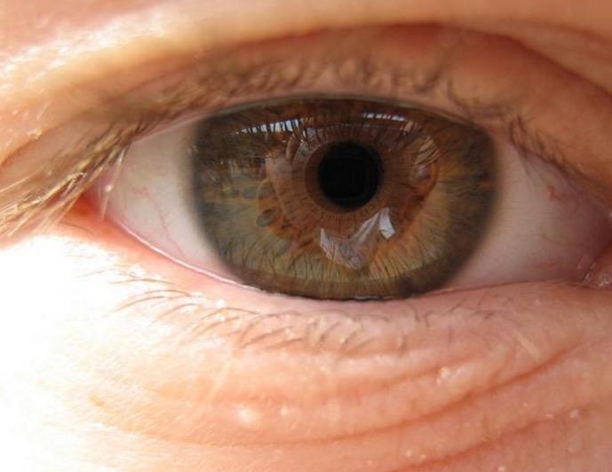 пожилые люди, болезнь Альцгеймера, пожилые люди, зрение, возрастная макулярная дегенерация