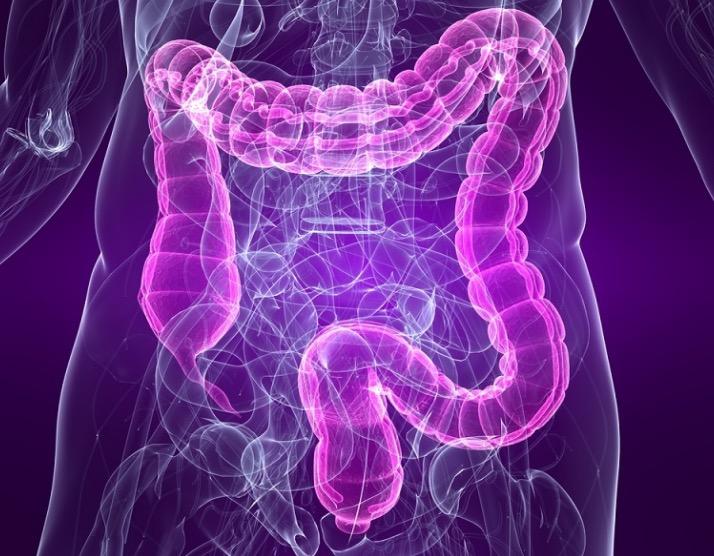 Витамин Е, селен, полипы, колоректальный рак