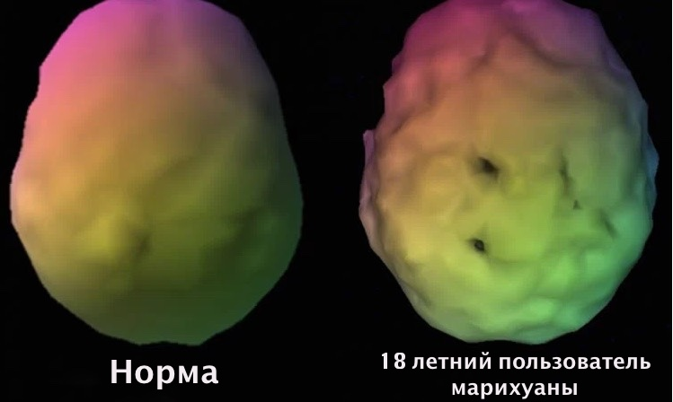 марихуана, болезнь Альцгеймера
