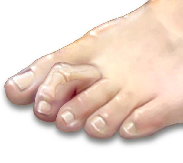 Молоткообразная деформация пальцев стоп: причины, симптомы и лечение