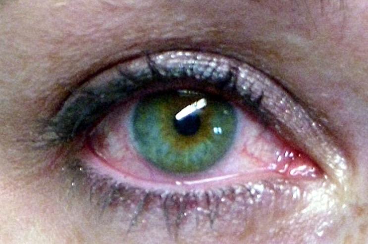 "синдром ""сухость глаза"""