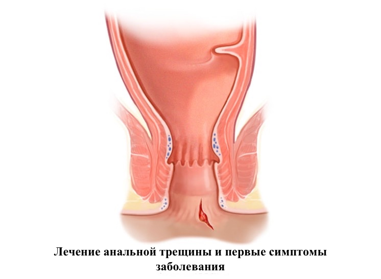 lecheniya-analnoy-treshini