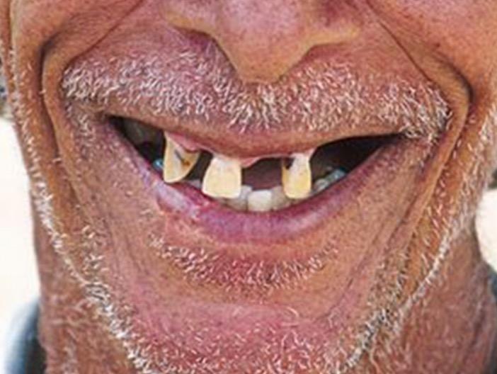 потеря зубов, деменция,