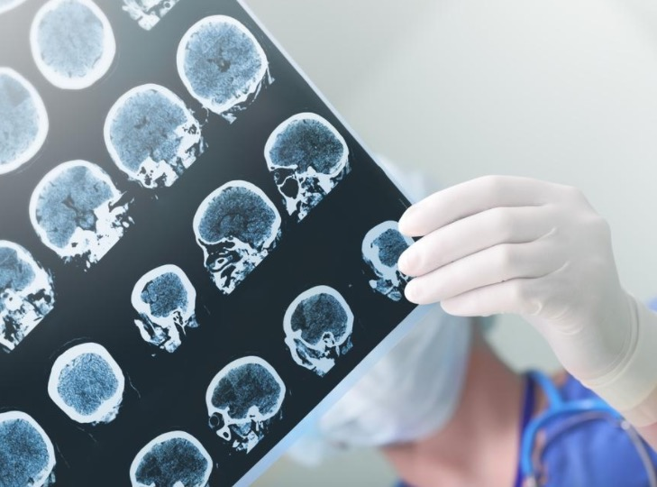 глиома, глиобластома, опухоль головного мозга, гены