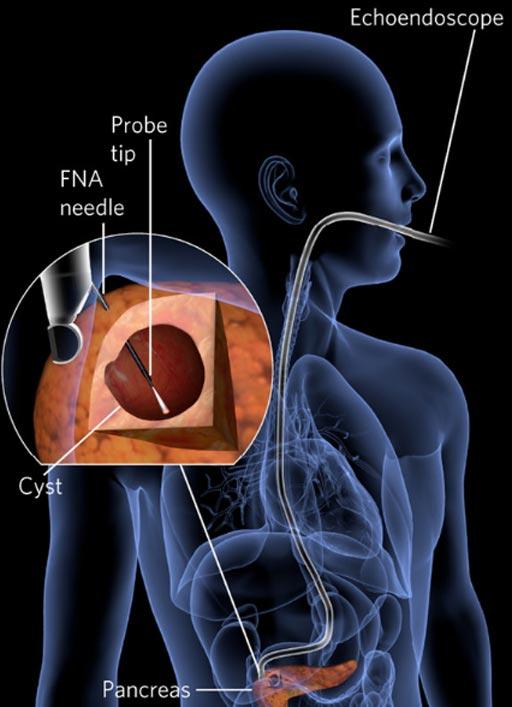 рак поджелудочной железы, спектроскопия рассеяния света