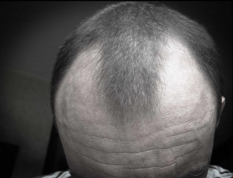 облысение, седые волосы