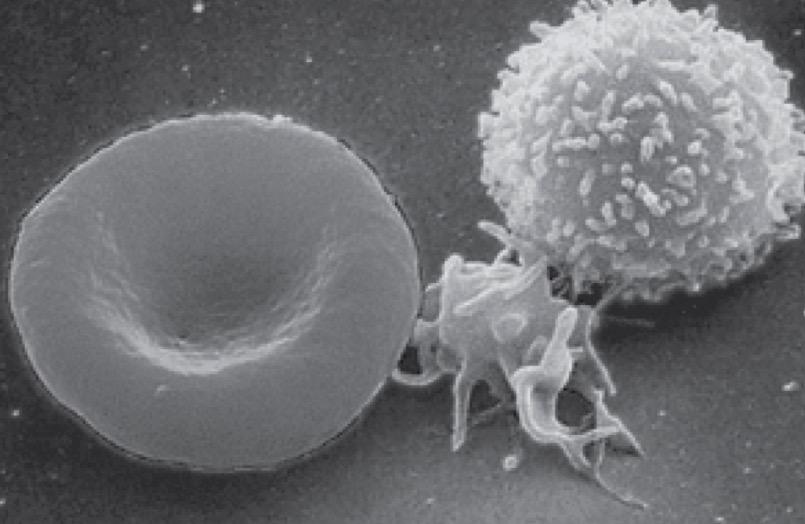 тромбоциты, рак