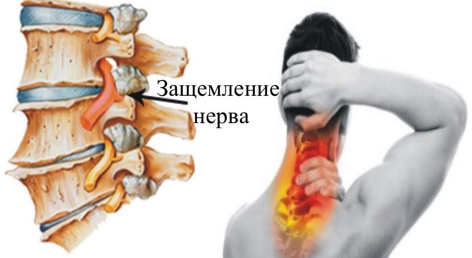 Защемление седалищного нерва: как снять и лечить воспаление нерва в поясничном отделе?