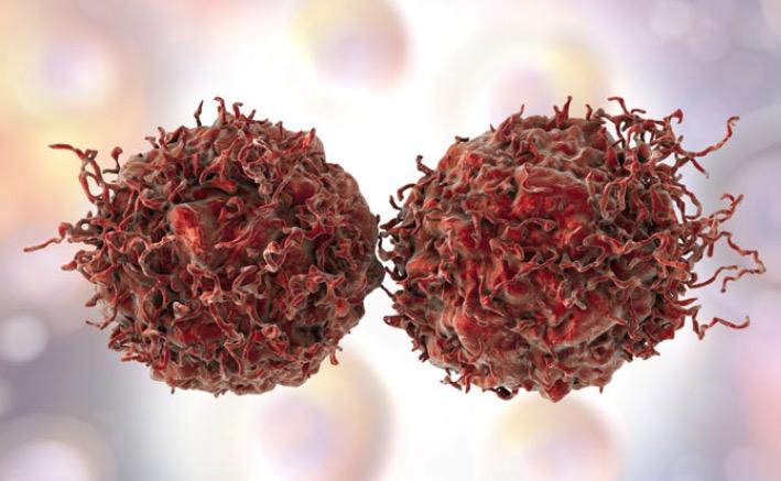 Рак простаты, иммунные клетки, опухоль,