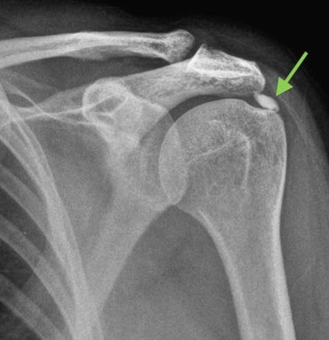 Кальцифицирующий тендинит плеча
