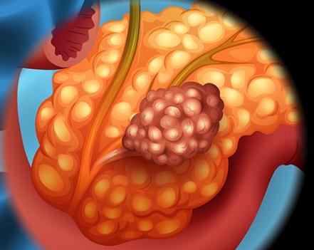 поджелудочной железа, рак
