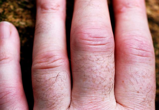 Прогноз при ревматоидном артрите и продолжительность жизни