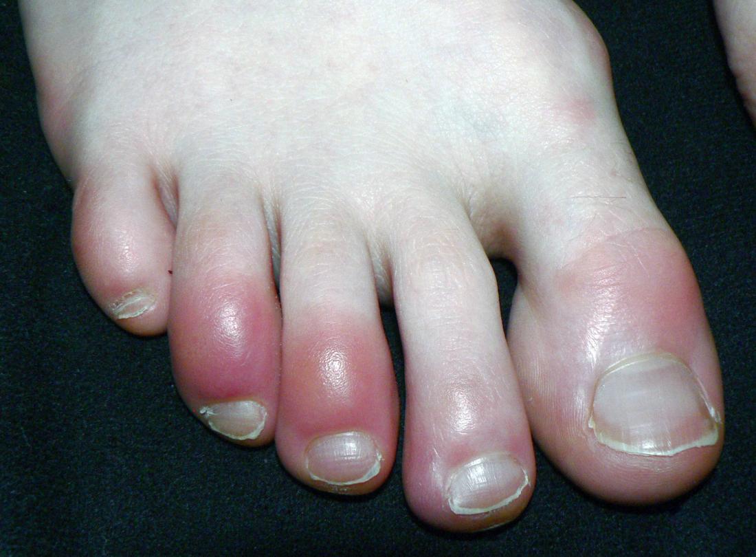 Красные пальцы на ногах - причины