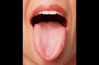 язва язык